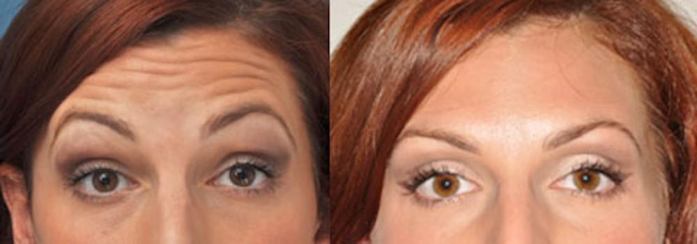 Botox Cosmeticis