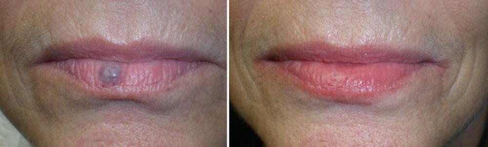 Spot on Lip