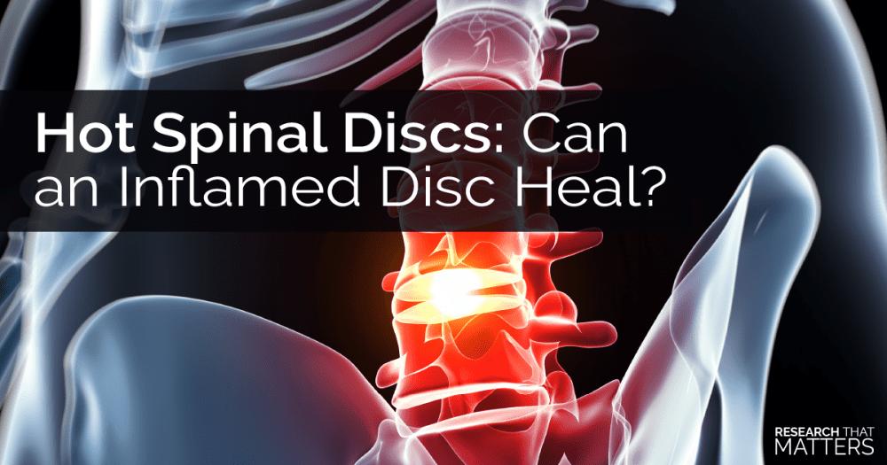 Disc Herniations chiropractic
