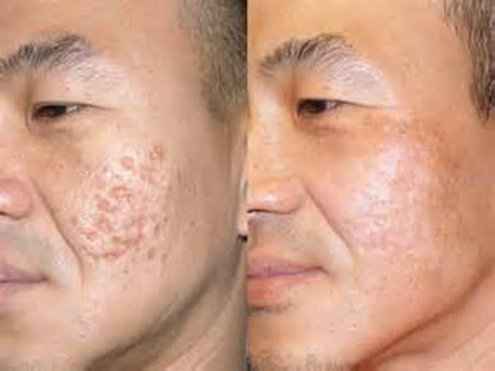 Resurfacing laser for acne scars