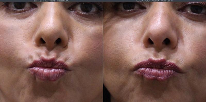 Botox Lip Flip - Torrance, CA: Lumier Medical