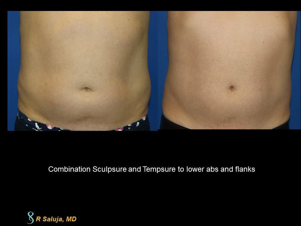 Sculpsure laser (fat) with Tempsure RF (skin tightening)