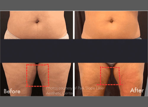 Velashape3 Before & After Photo
