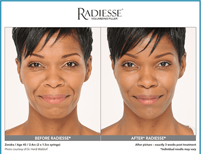 Radiesse for Hands - Santa Barbara, CA: Kind Dermatology and