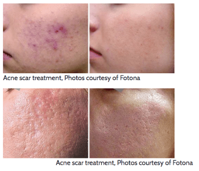 Acne Scarring - Ocean Parkway, Midwood Brooklyn, NY: Dr