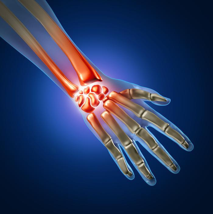 Dupuytren's Contracture Precision Bone and Joint in Austin, Texas