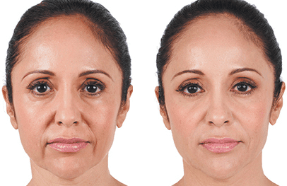 Juvéderm Collection Of Fillers - Miami, FL: Alexander Medical Spa