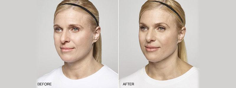 Facial Dermal Filler - Miami, FL: Alexander Medical Spa