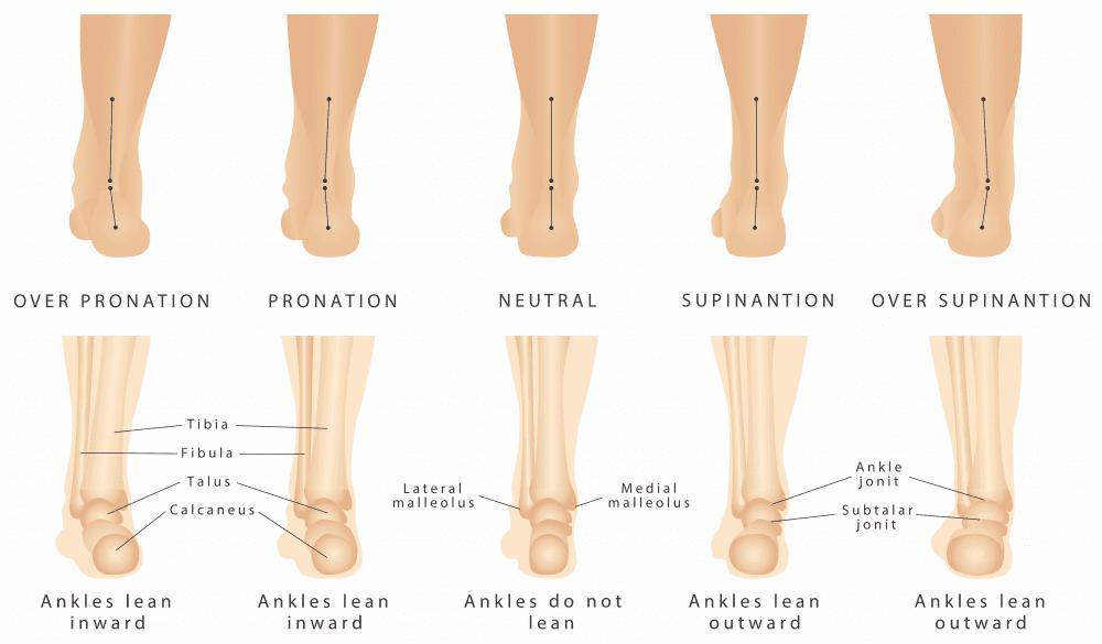 Neuhaus Foot \u0026 Ankle
