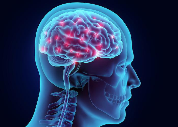 Dementia, Red Meat, Diet, Exercise, Alzheimer's