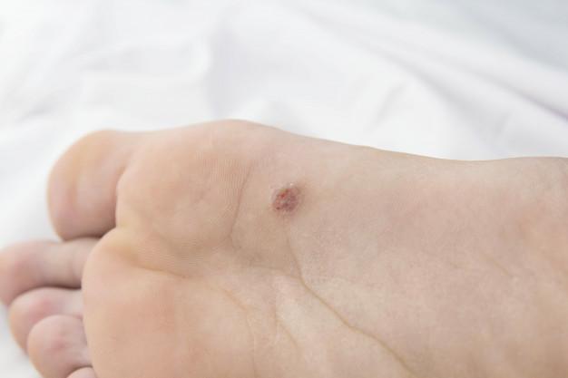 Warts, Dermatology, plantar warts, wart treatment, cryotherapy, electrotherapy