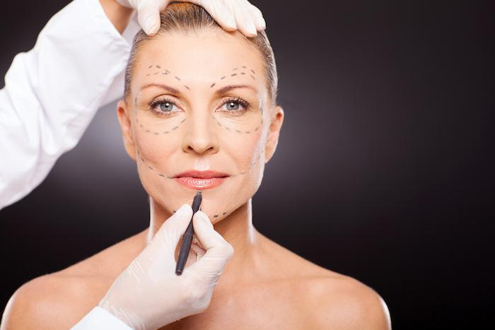 Plastic Surgery, Face, Skin, Tightening, Cosmetic