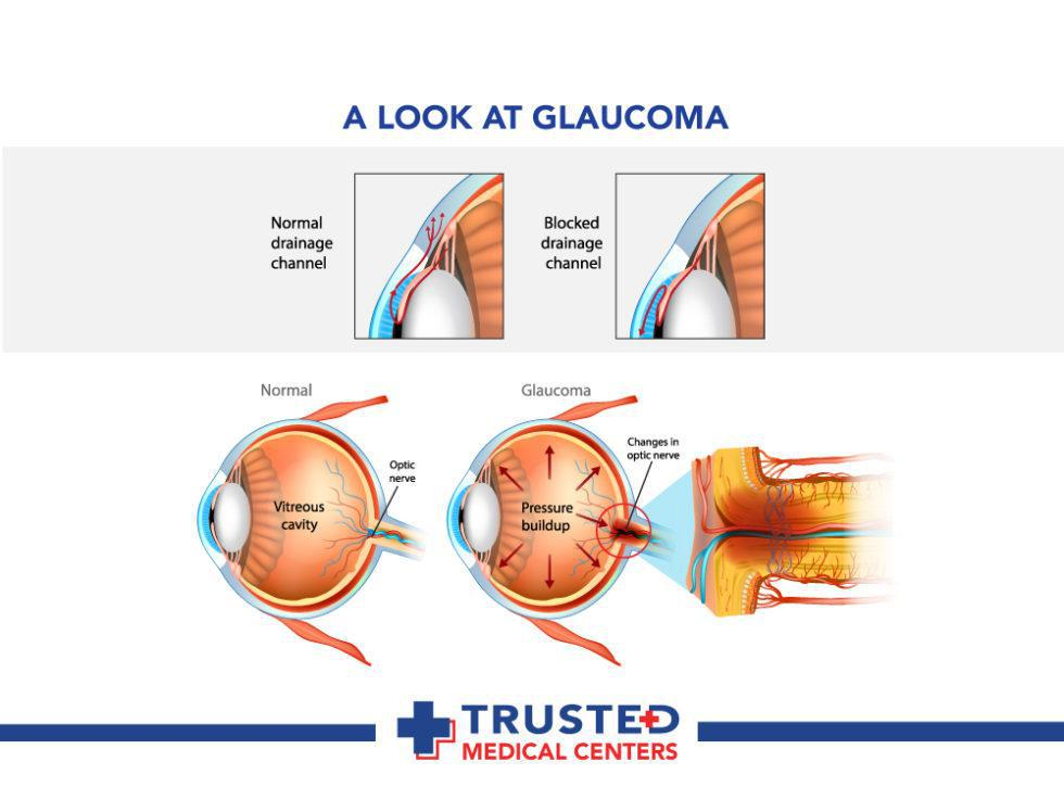 Glaucoma: Signs, Symptoms, and Treatment: Trusted Medical