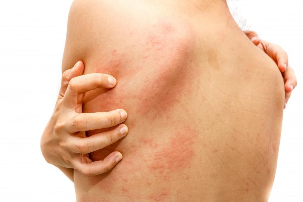 5 Common Triggers of Sudden-Onset Hives: AIR Care: Asthma