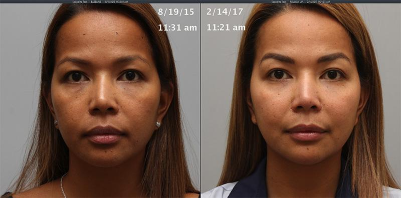 Face (Multiple Fillers) - Torrance, CA: Lumier Medical