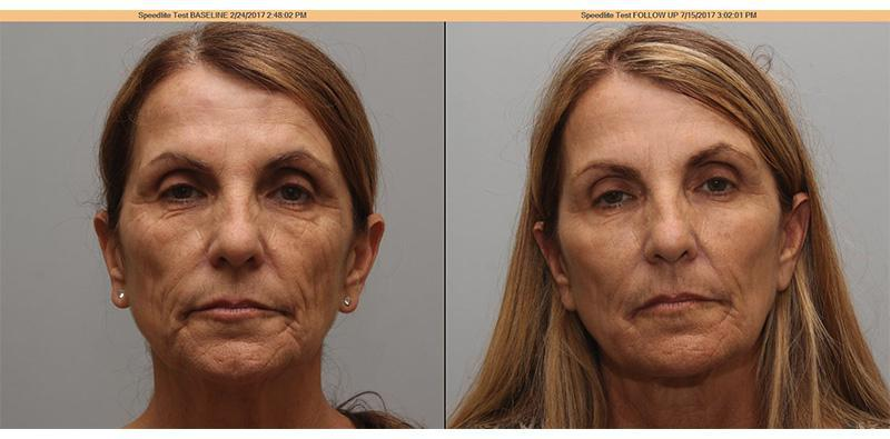 Face (Multiple Fillers) - Torrance, CA: Lumier Medical