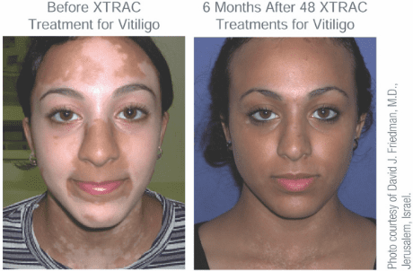 Xtrac Laser Treatment For Psoriasis And Vitiligo