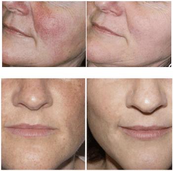 IPL-Photofacial Skin Rejuvenation - Park Slope Brooklyn, NY: Park