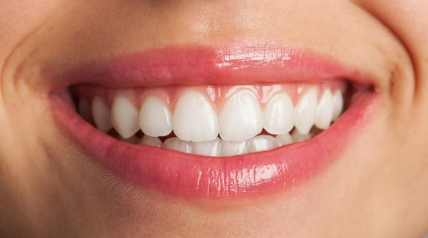 Professionally Whitened, teeth whitening