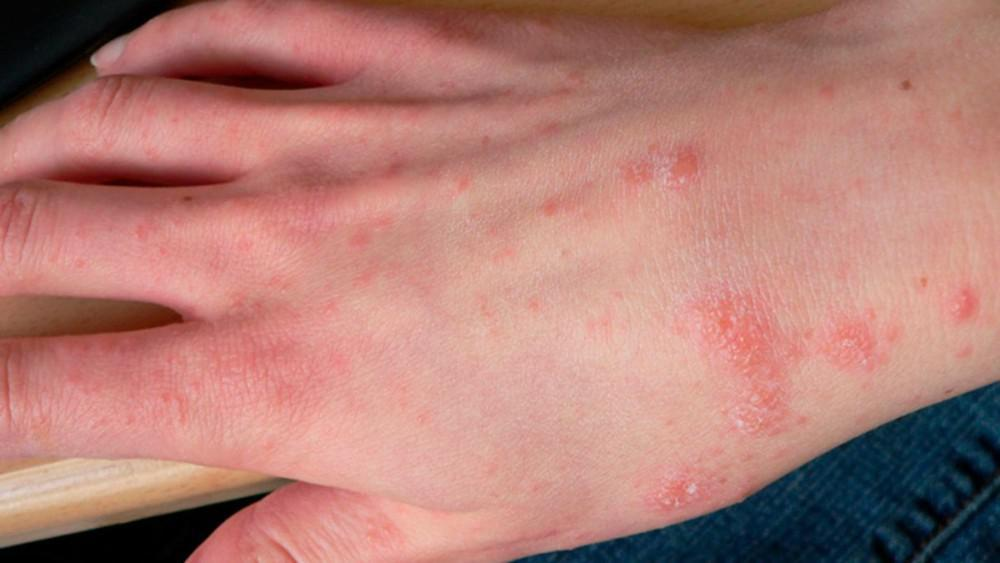 Scabies The Infuriating Insatiable Itch Pine Belt Dermatology Skin Cancer Center General Cosmetic Dermatologists