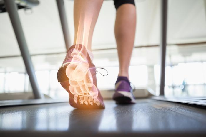 Custom Orthotics foot pain, animas foot and ankle