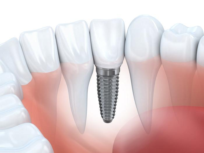 Dental Implant, Missing Teeth, Bridge,