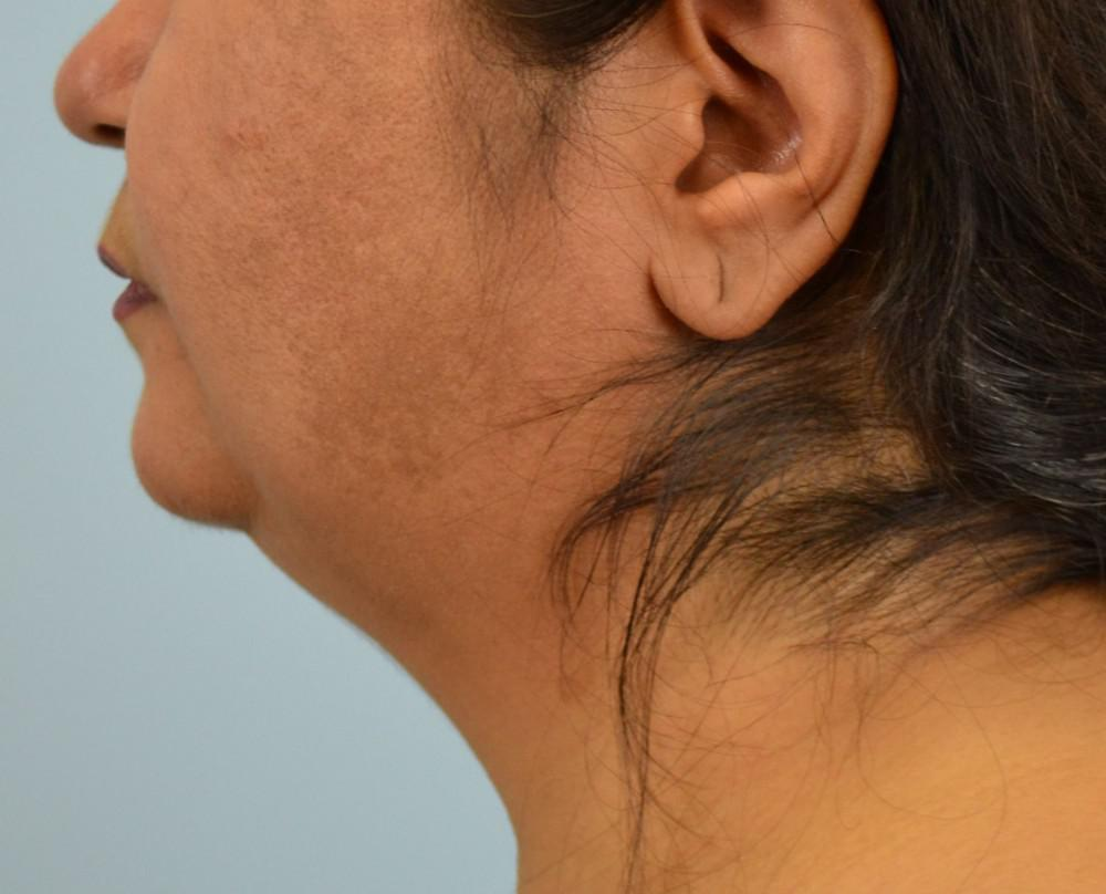 double chin, Kybella, Injection, weight loss, liposuction