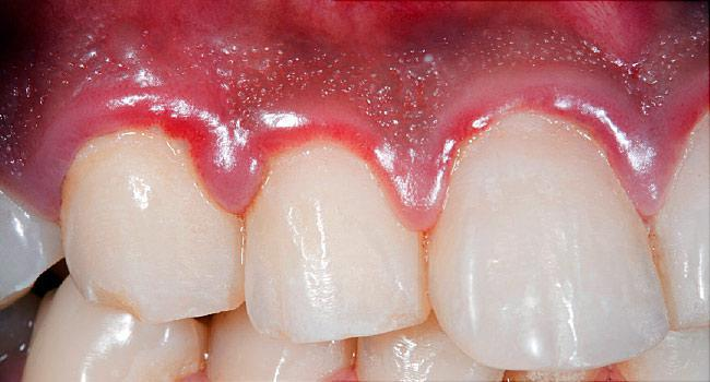 Gum Disease, Dentist, Cleaning, Brushing, Prevention