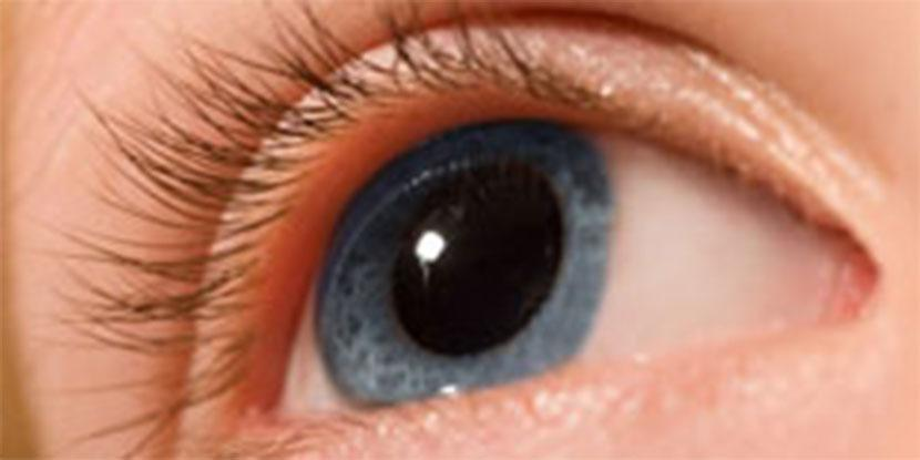 Eye, Cornea, Cross linking, Corneal transplant, Keratoconus