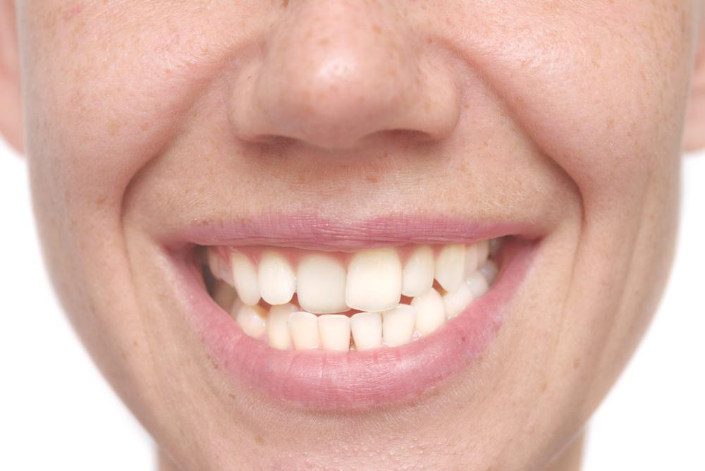 Your Misalignment Could Be the Root Cause of Gum Disease