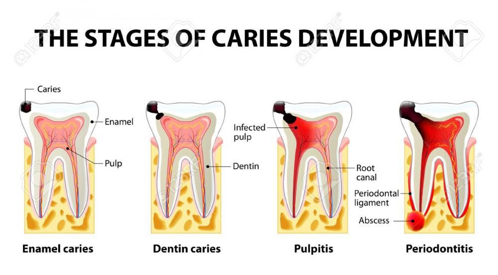 what are dental caries?
