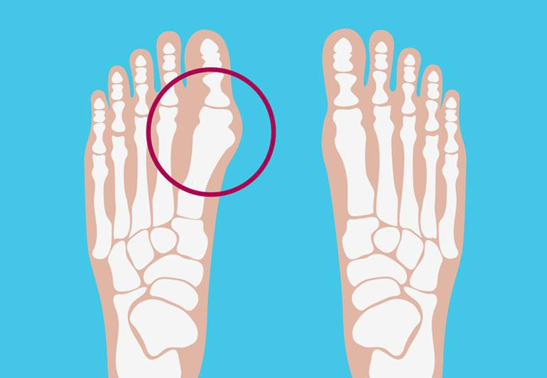 bunion, surgery, toe, pain, avoidance