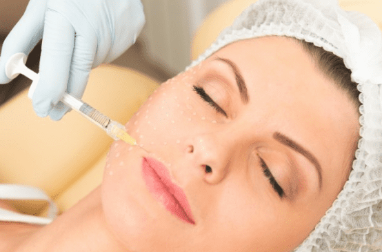 Fine Lines And Wrinkles Juvederm