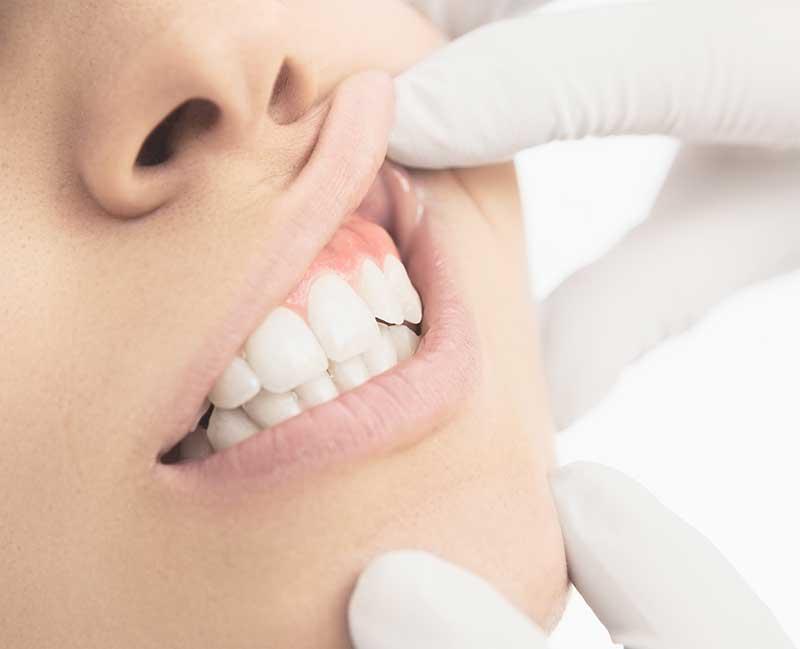 Gum Disease, Dentist, Cleaning, Brushing, Prevention, gingivitis
