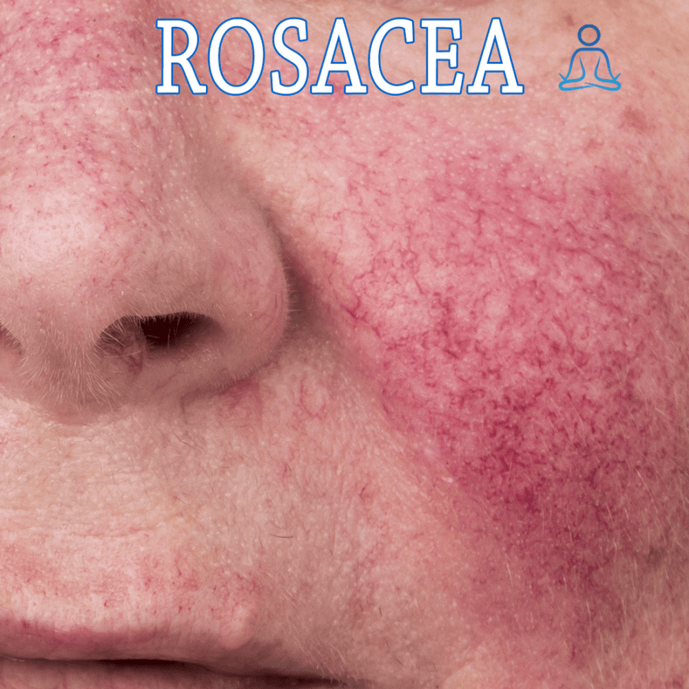 Rosacea is a chronic condition, although there is no cure, Luminary MD offers many solutions to this problem, including VI Pe