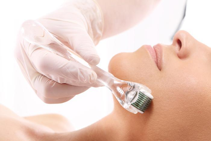 Microneedling, microneedling can help you get clearer smoother skin, perfect skin, facial treatment