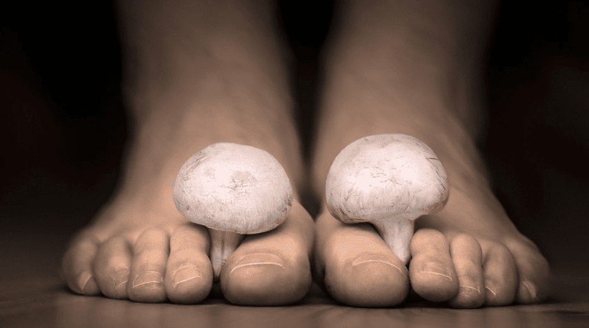 Toenail Fungus Dr. Ryan Golub, DPM, of Arizona Foot Health in Phoenix