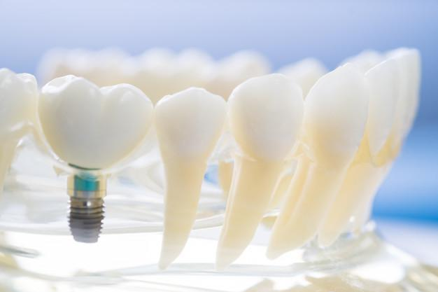 Why Dental Implants are the Best Choice for Replacing Missing Teeth, perfect teeth, dental work, replacing a missing tooth