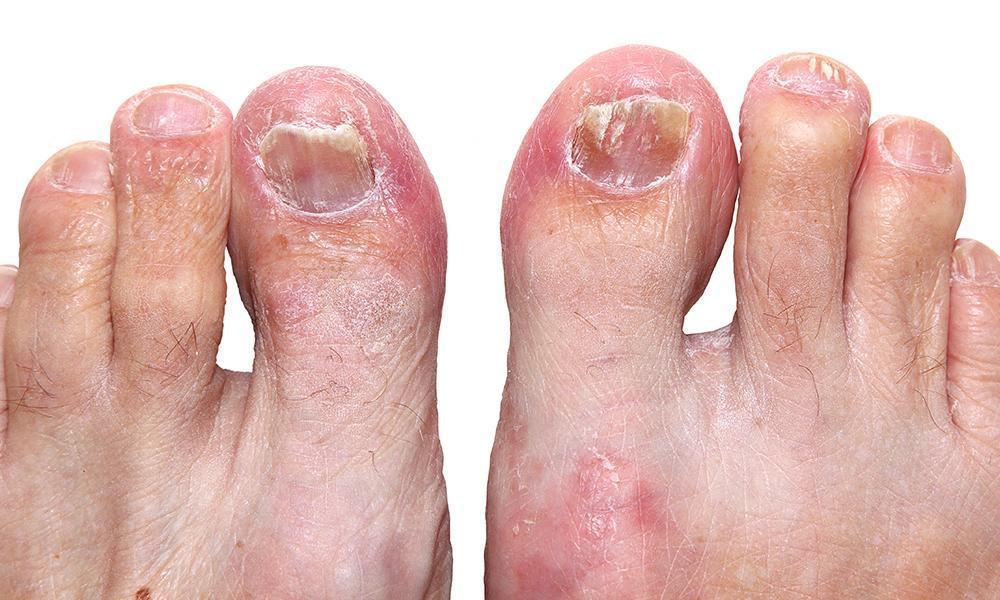 Remedy Ugly Yellow Toenail Fungus Before Sandal Season : Family Foot ...