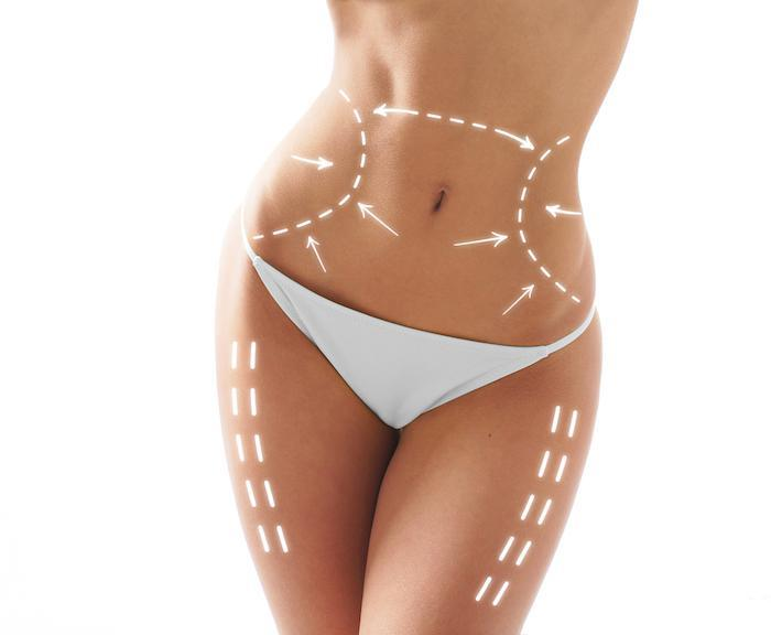 Body, Summer, Beach, Bathing Suit, Sun, SculpSure, contouring, bodytite