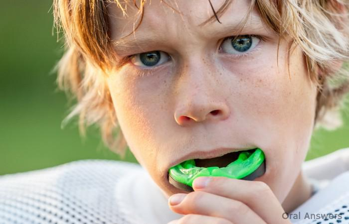 What is a mouth guard, When Should Young Athletes Wear Mouth Guards, The types of mouth guards