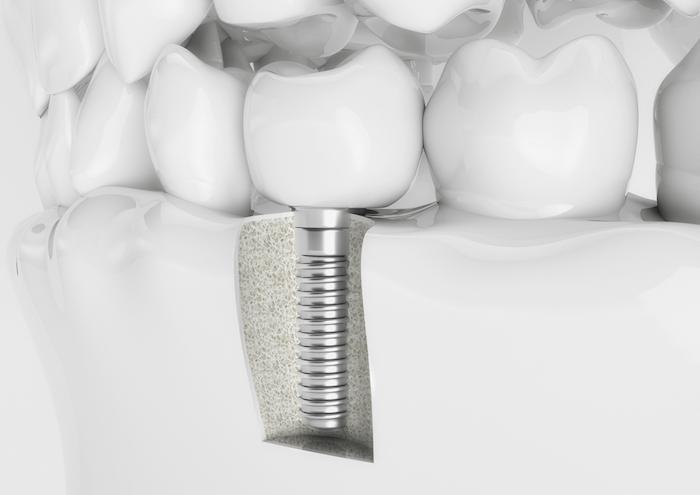 Dental Implant, Missing Teeth, Bridge, veneer, smile