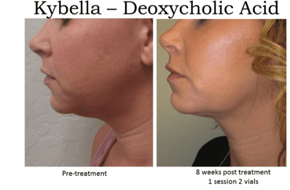 kybella, double chin, Aesthetic Assets