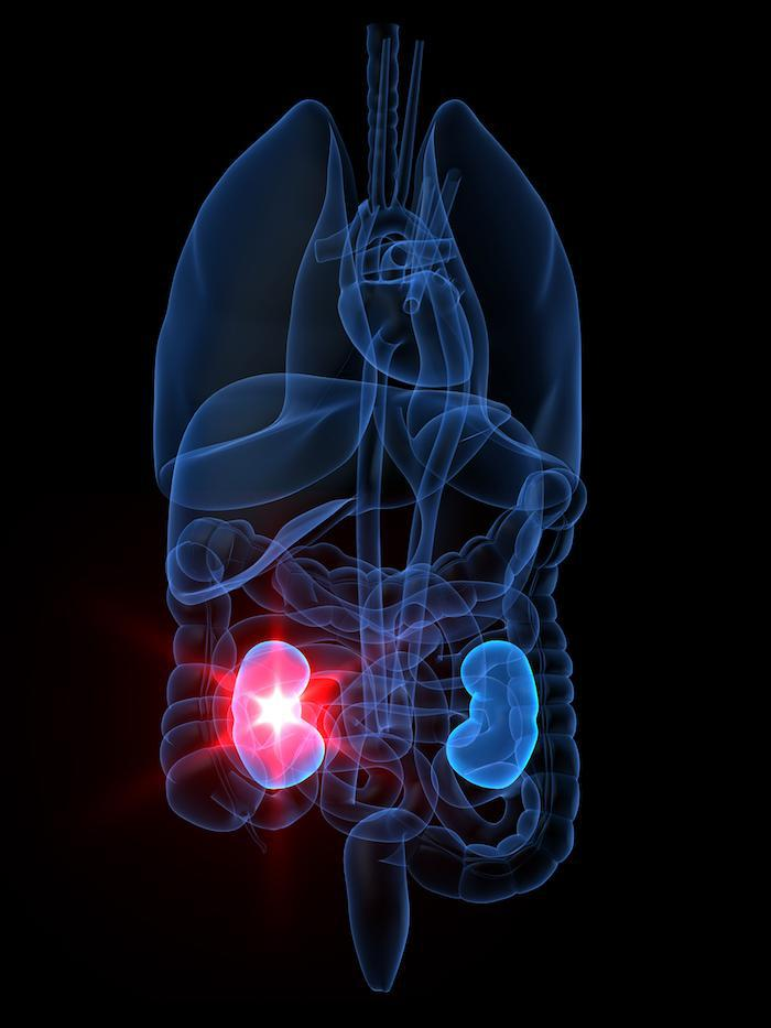 Kidney Stone Urology Associates