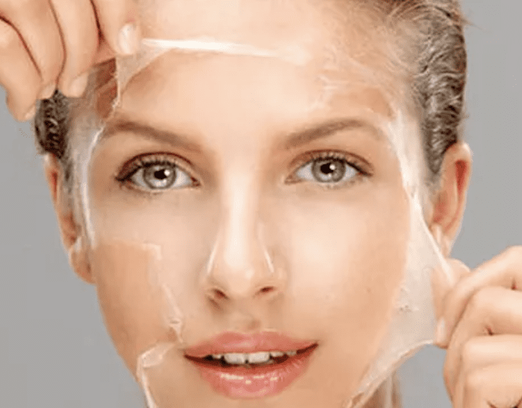 woman face with chemical peel