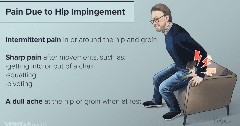hip impingement, pain, causes