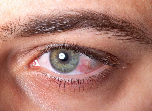 Summertime Tips for Chronic Dry Eyes