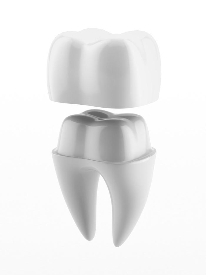 crown, implant, smile, dentist