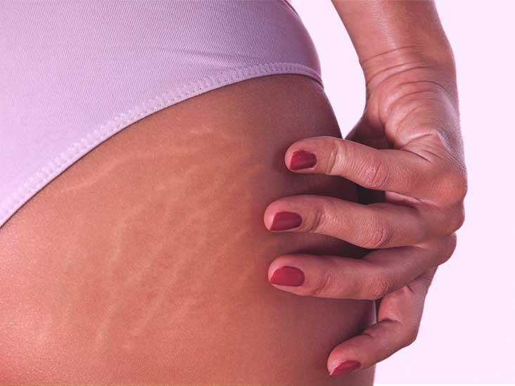 Measurements Of Stretch Marks