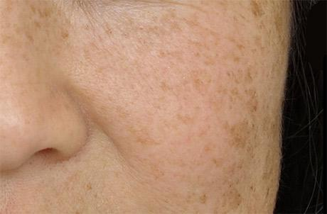 Primary Laser Skincare Up To 80 Off Groupon